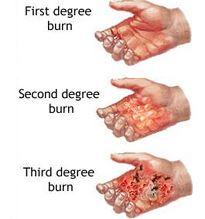 burn injury lawsuit