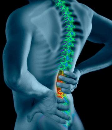 back injury lawsuit