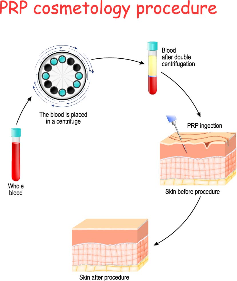 PRP cosmetology procedure