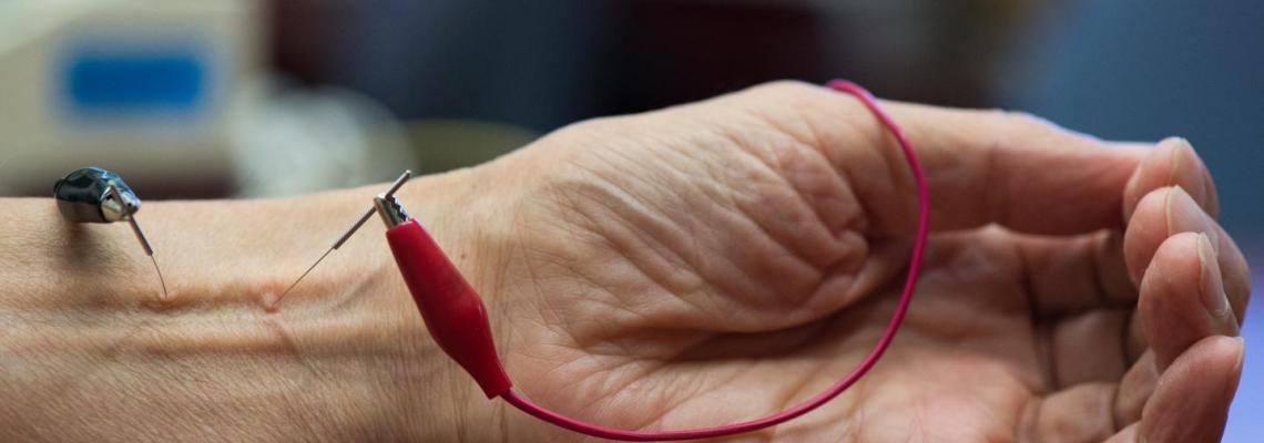 The powerful healing ability of E-stimulation with acupuncture