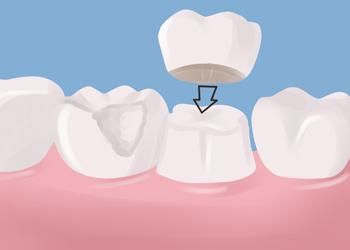 affordable dental crowns, Lawrenceville Hwy, Lilburn, GA