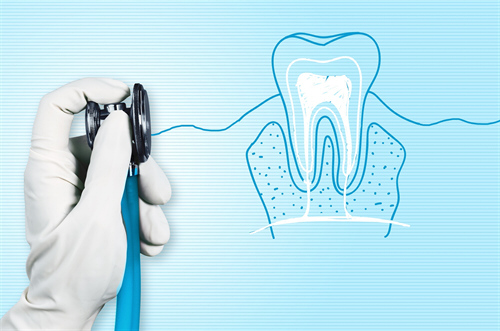 Affordable Root Canal Treatment