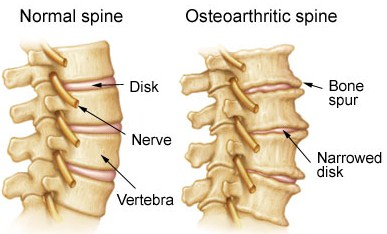 The Link Between Tight Joints and Spinal Arthritis