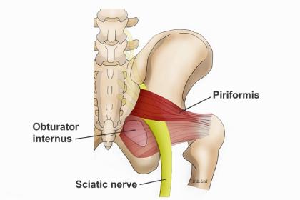 piriformis-syndrome-image
