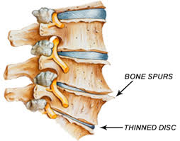 Joint Hypermobility and Spinal Arthritis