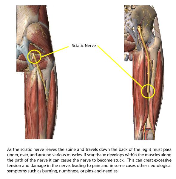 path-of-the-sciatic-nerve