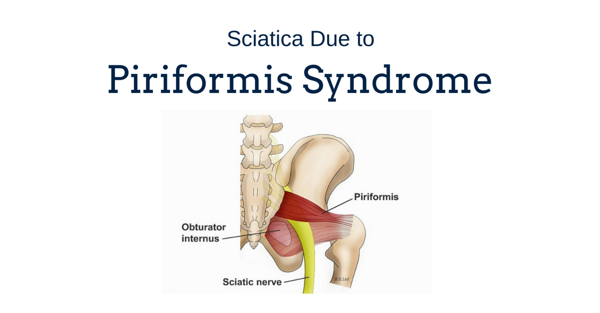 Sciatica Due to Piriformis Syndrome