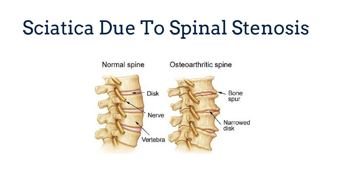 Sciatica Due To Spinal Stenosis