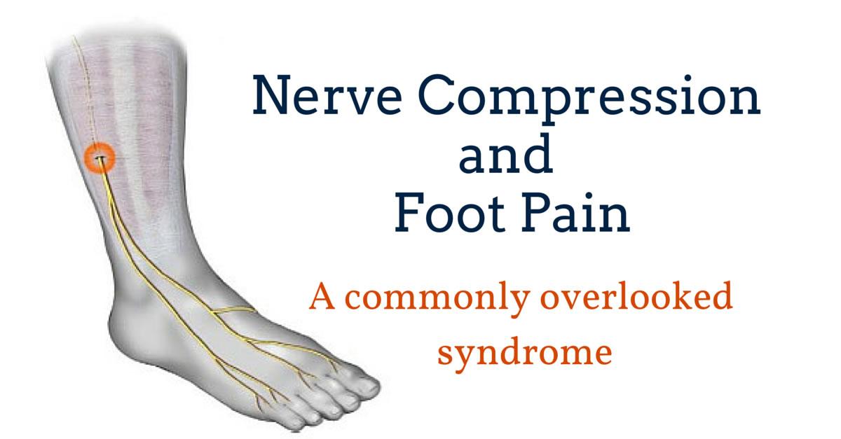 Foot Pain Due to A Nerve Entrapment