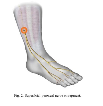 The peroneal nerve supplies the shin and top of the foot. It can become entrapped as it passes under the muscles of the shin and ankle.