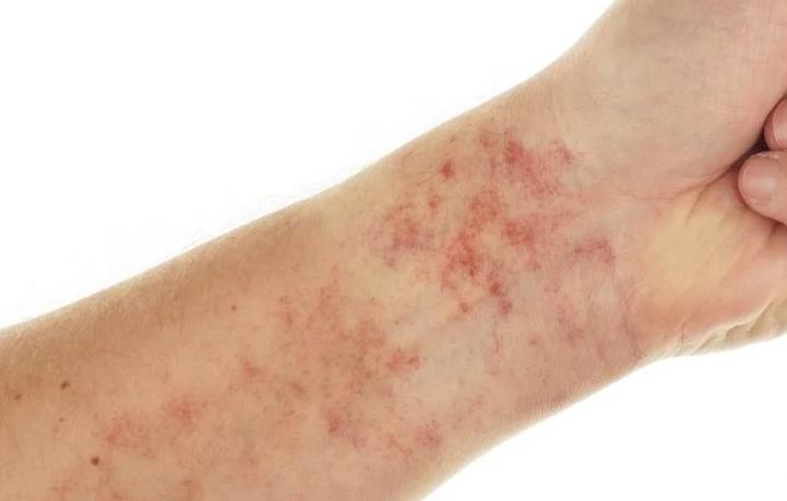 niacin (vitamin B3) deficiency