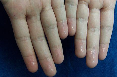 sweaty hand