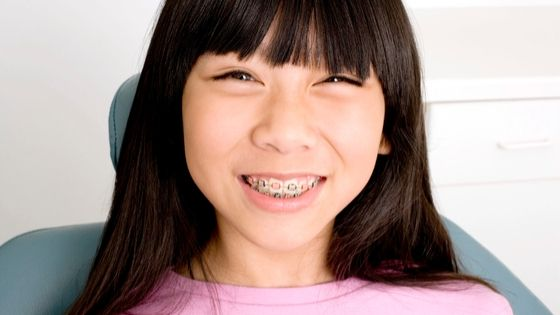 how to keep your teeth white with braces - Lyons Orthodontics