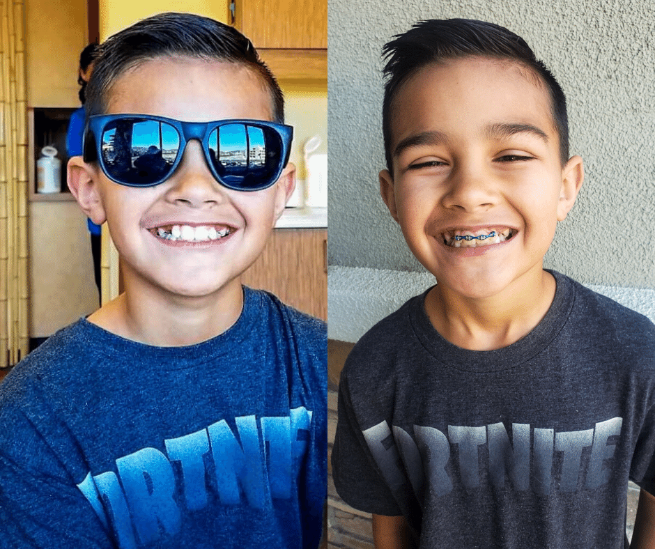 before and after braces el dorado hills