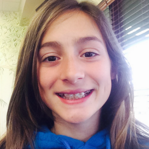 Lyons Orthodontics EDH Review - Teen Braces