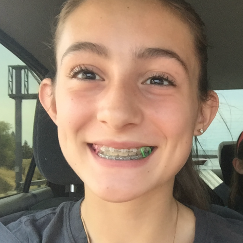 Lyons Orthodontics EDH Review - During Braces