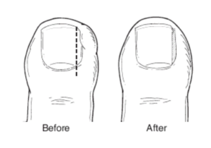 Ingrown toe-nails are treated by Podiatrists at Complete Step in Mount Martha