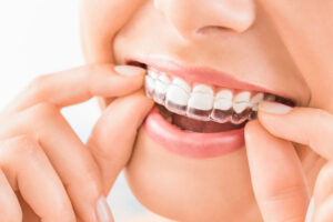 The Advantages of Invisalign for Teens