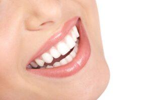 Instant Orthodontics with Porcelain Veneers