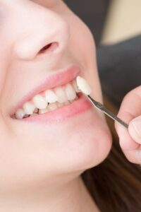 Enhance the Beauty of Your Smile with Porcelain Veneers