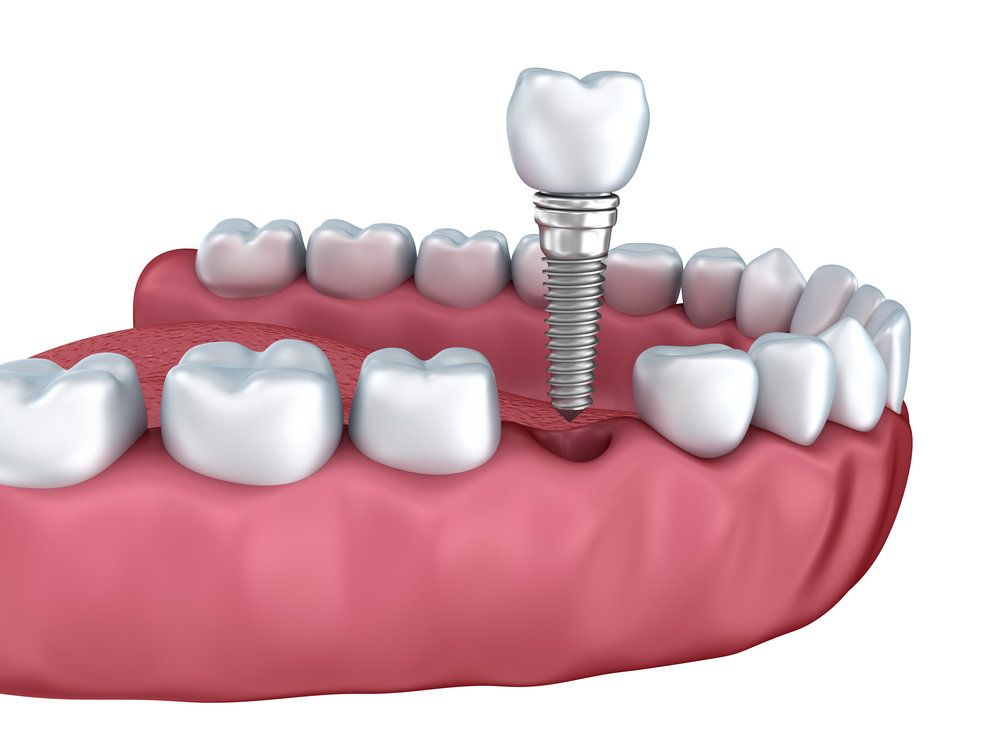 Mind the Gap: Treatment Options for Missing Teeth