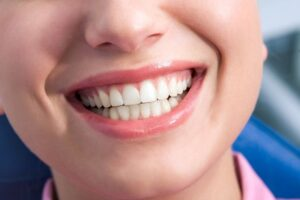 Teeth Whitening Side Effects – What Should I Expect?