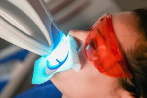 Professional vs. Over-the-Counter Teeth Whitening: Safety, Efficacy, and Cost