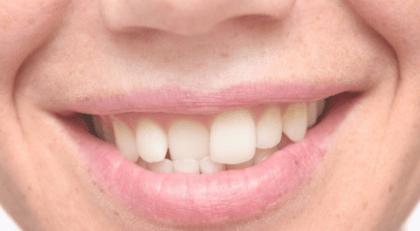 Misaligned Bite Treatment