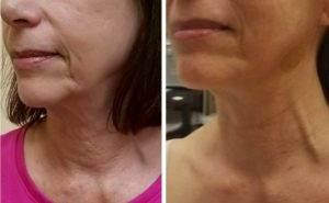 Look Years Younger Thanks to Pampered Skin Studio