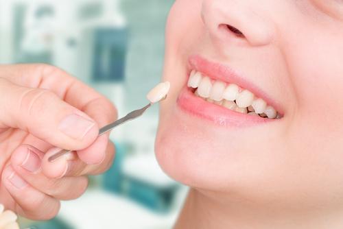 dental veneers aldan