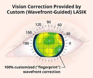 Wavefront Custom Lasik