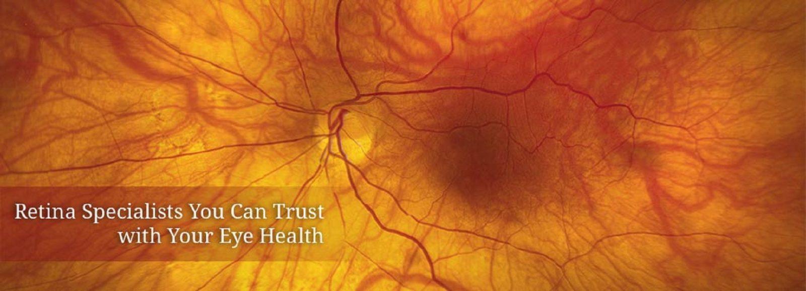 retina vitreous lasik eye center