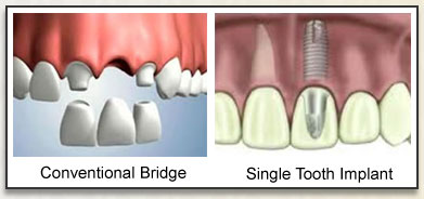 Implants & Dental Bridges