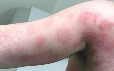 What is Causing My Rash?  The Challenge of Allergic Contact Dermatitis.