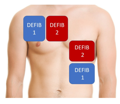 """""""Anterior-anterior"""" pad placement option for dual/double defibrillation."""