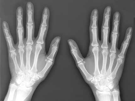 X-Ray Destruction