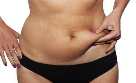 Recovery from Smartlipo