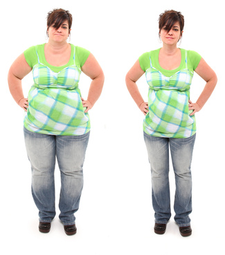 Health and Social Life Improve After Weight Loss Surgery: Study