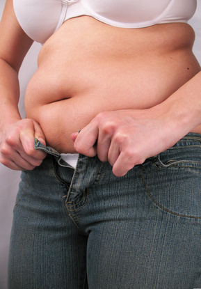 Is Bariatric Surgery Right For Me?