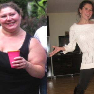 Jackie – Gastric Bypass*