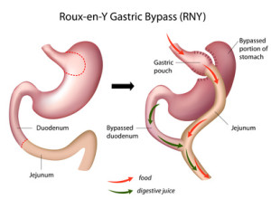 Who Is a Candidate for Gastric Bypass?