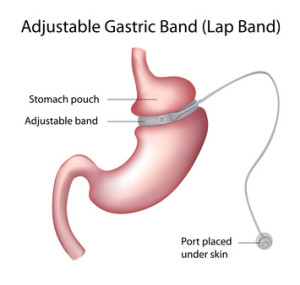 What Is Laparoscopic Bariatric Surgery?