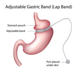 What Is Laparoscopic Bariatric Surgery?