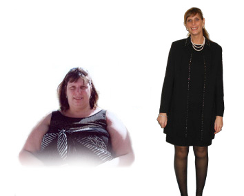 Rose – Gastric Bypass*