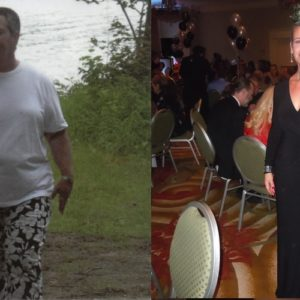 Andrea – Gastric Bypass*