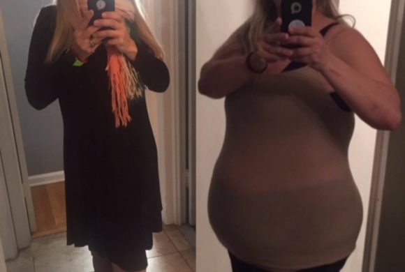 Angela Maraglino – *Gastric Sleeve