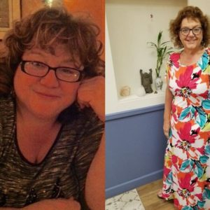 Stacey Grace Biggio – Sleeve Gastrectomy*
