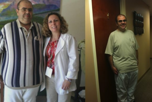 Chris – Gastric Bypass*