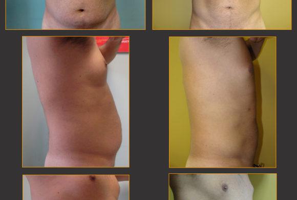 Flatter Stomach*
