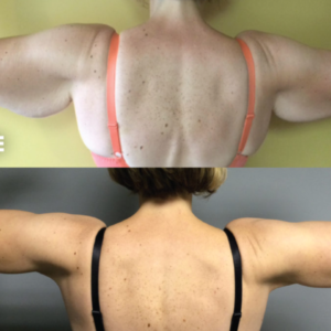 Am I a Good Candidate For Smartlipo/Laser Liposuction?